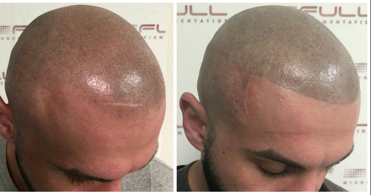 Scalp Micropigmentation- A Solution For Hairloss
