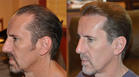 Individualized Treatments With California Hair Restoration